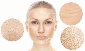 Dấu hiệu lão hóa da trên gương mặt của phụ nữ sau tuổi 30